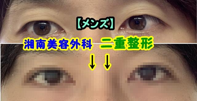 湘南美容外科 二重整形 メンズ